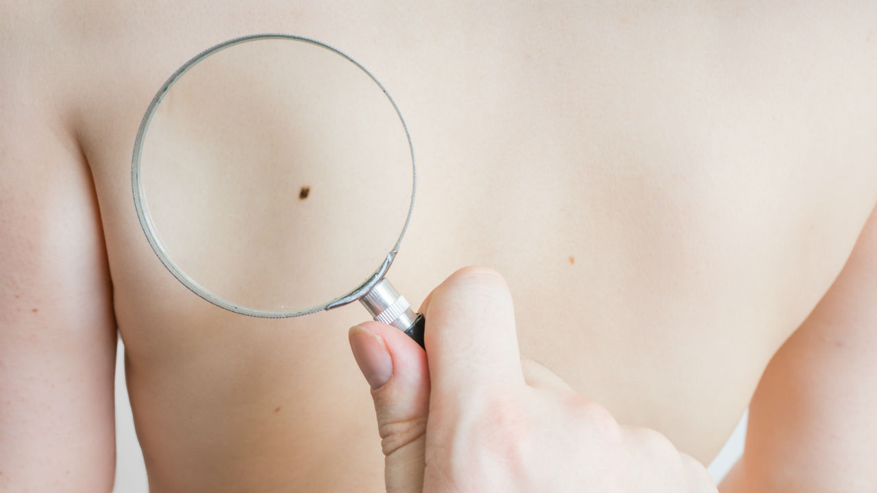 FDA Approves New Melanoma Treatment