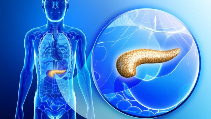 Pancreatic Cancer Screening in Development